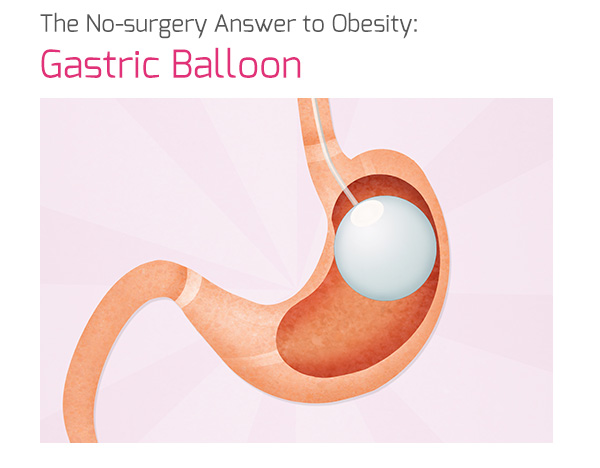 The No-surgery Answer to Obesity: Gastric Balloon