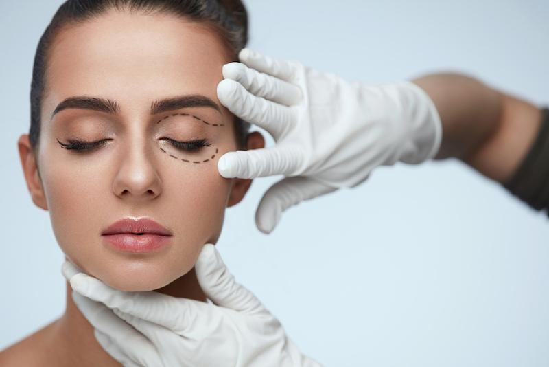 eye lift surgery