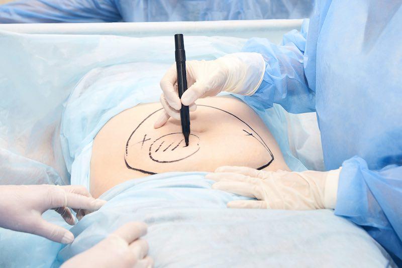 liposuction fat