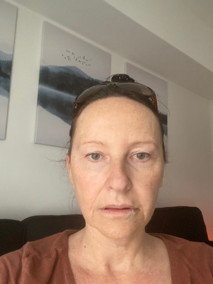 Facelift Eyelids Before Surgery