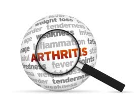 Arthritis – A Potential Cure