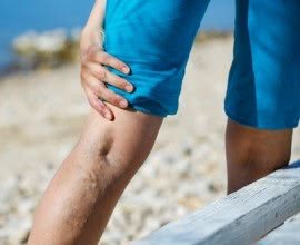 VenaSeal: New Painless Treatment for Varicose Veins
