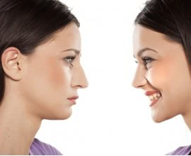 Rhinoplasty (Nose Surgery) - Costs Both Financial and Aesthetic