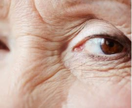 Blepharoplasty: A Short Surgery to Get Rid of Your Eye Wrinkles Long-term