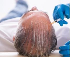 Haartransplantation