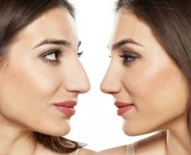 Wie die Nase eines Mannes, …