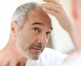 The Origin and Progress of Hair Loss Treatment