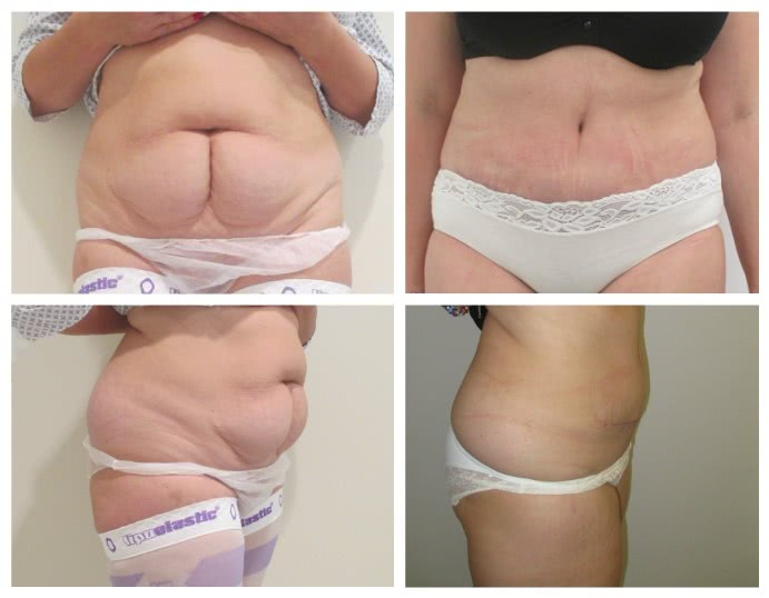 Before x After Abdominoplasty 1