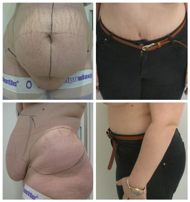 Before x After Abdominoplasty 3