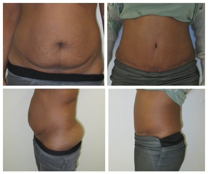 Before x After Abdominoplasty 2