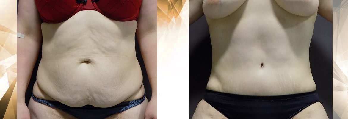 abdominoplasty 6