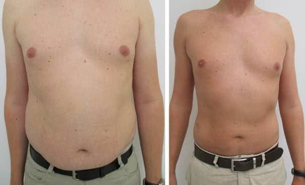 Liposuction 4