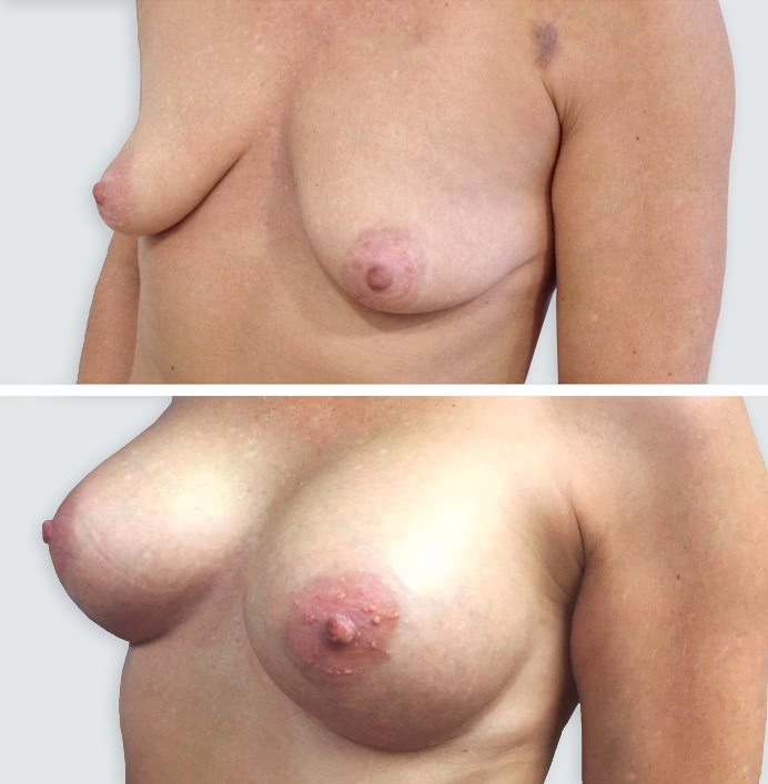 breast implants 7