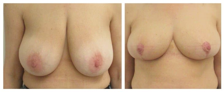 Breast lift 2