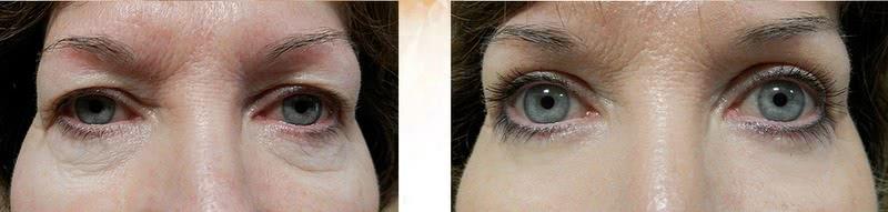 Eyelids 1