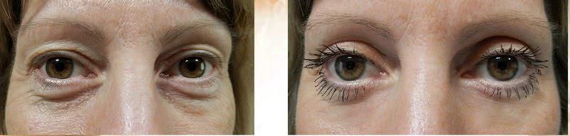 Eyelids 2