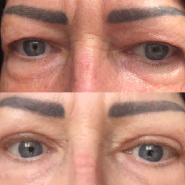 eyelids 5