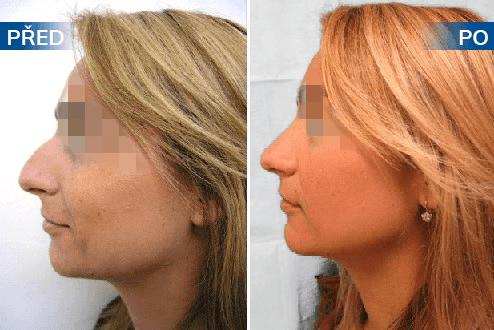 Nose surgery 8