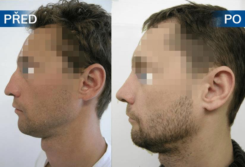 Nose surgery 9