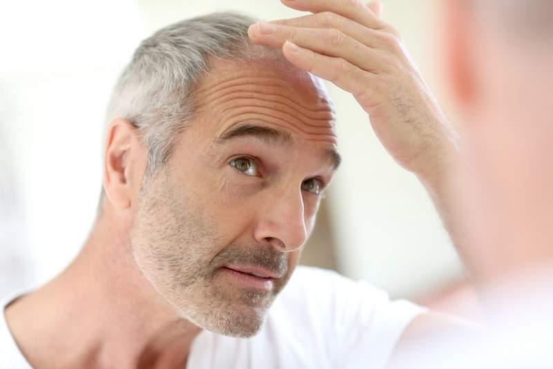 FUT, Hair Loss